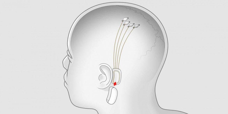 Ілон Маск: Neuralink здатний транслювати музику в мозок