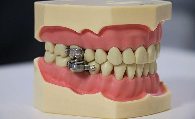 Новозеландські вчені представили пристрій для схуднення, який не дозволяє відкривати рот